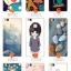 (พรีออเดอร์) เคส Huawei/P9 lite-เคสนิ่มลายการ์ตูน thumbnail 4