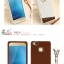 (พรีออเดอร์) เคส Huawei/P9 lite-Fabitoo thumbnail 19
