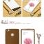 (พรีออเดอร์) เคส Xiaomi/Mi Max-Fabitoo thumbnail 18