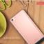 (พรีออเดอร์) เคส Xiaomi/Mi5-Keziwu thumbnail 8