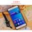 (พรีออเดอร์) เคส Huawei/P9 lite-เคสนิ่มลายการ์ตูน thumbnail 7