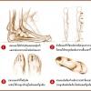 รองเท้าเพื่อสุขภาพเท้า สำหรับคนรักสุขภาพ ใส่ใจทุกย่างก้าวของคุณ