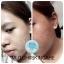มัชชิ อโลเวร่า เฟเชียล เจล ขนาดทดลอง Mutchii Aloe Vera Facial Gel thumbnail 5