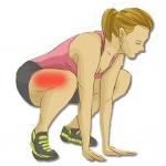 กล้ามเนื้ออักเสบ กล้ามเนื้ออักเสบคืออะไร, สาเหตุของกล้ามเนื้ออักเสบ, การรักษาและวิธีดูแลตนเองเมื่อกล้ามเนื้ออักเสบ